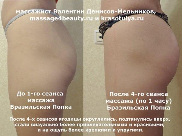 фото целлюлита на ногах и жопе