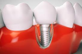 Каковы различные типы отторжение зубного импланта