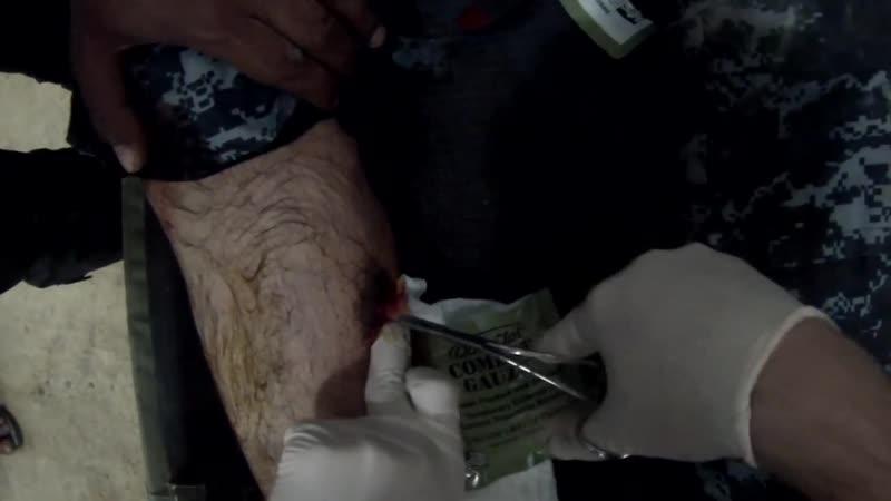 Gunshot wound to the leg