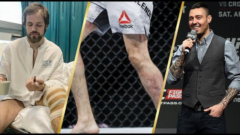 Травмы бойцов UFC, Дэн Харди о возвращении в UFC, Скотт Кокер о бое МакДональд vs. Аскрен
