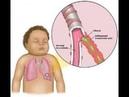 бронхит катаральный и обструктивный у детей и взрослых