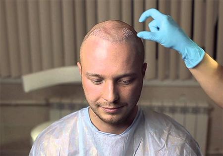 Операция по пересадке волос является чрезвычайно сложной процедурой.
