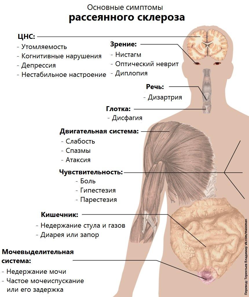Симптомы рассеянного склероза у женщин начальная стадия как выглядит