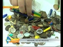 Всё чаще в регионе дети глотают предметы, которые могут привести к инвалидности ребёнка