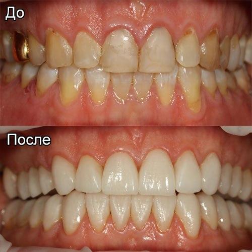 Сколько стоит фторирование зубов цена