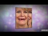 PERFECT SMILE VENEERS - ОБВОРОЖИТЕЛЬНАЯ УЛЫБКА ТЕПЕРЬ ДОСТУПНА ВСЕМ