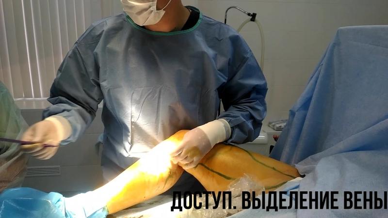 ЭВЛК лазерная коагуляция Флеболог Санкт Петербург смотреть онлайн без регистрации