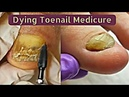 Pedicure Tutorial Dying Toenail Medicure By Professional Pedicurists👣