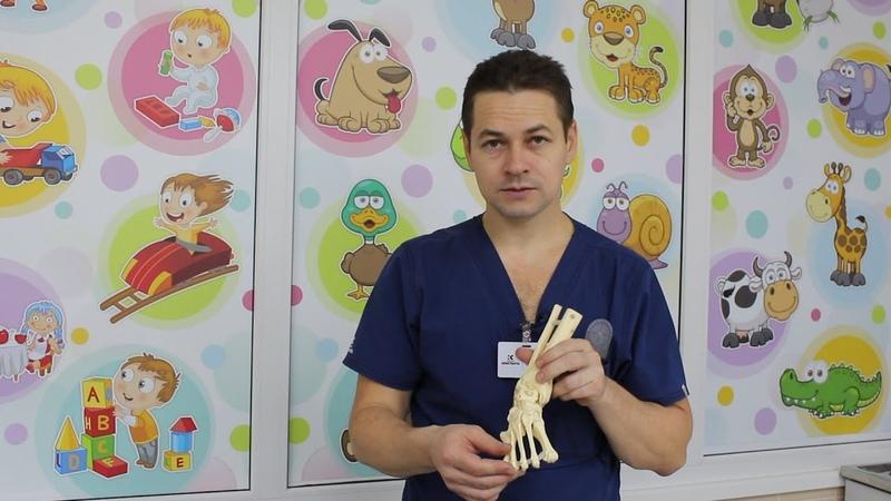 Массаж стоп и голени не рекомендуется после лечения косолапости по методу Понсети