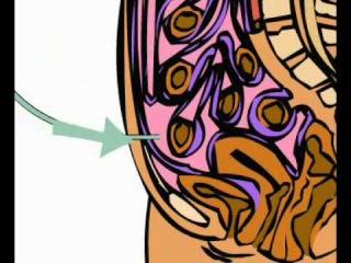 Гемодиализ и перитонеальный диализ