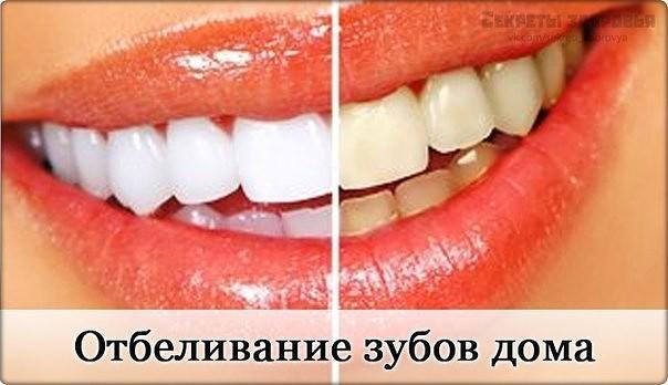 Рецепт отбеливания и лечения зубов по Неумывакину (Доктор медицинских наук)