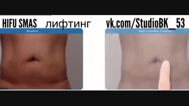 HIFU SMAS лифтинг(ультразвуковой лифтинг лица и тела). Напоминаем что HIFU SMAS лифтинг очень эффективен не только на лице, но и