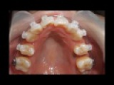 Orthodontic library ID. Chart No.4901