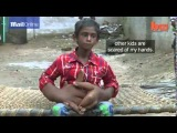 Young Indian boy's gigantic 8kg hands...