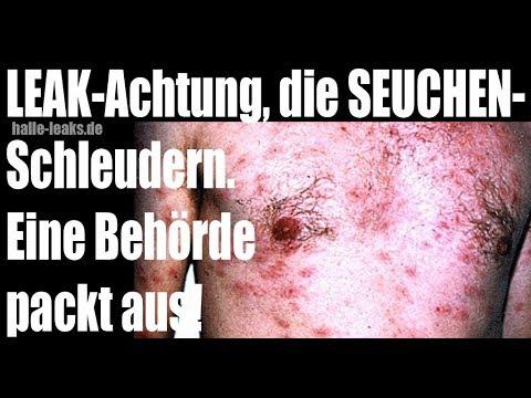 TEILEN - Leak aus der Behörde - Die Seuchenschleudern Hepatitis, TBC, Krätze, Mundfäule, Aids