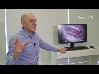 Чем опасны анаэробы Причины возникновения зубного налёта и зубного камня _ Дентал ТВ