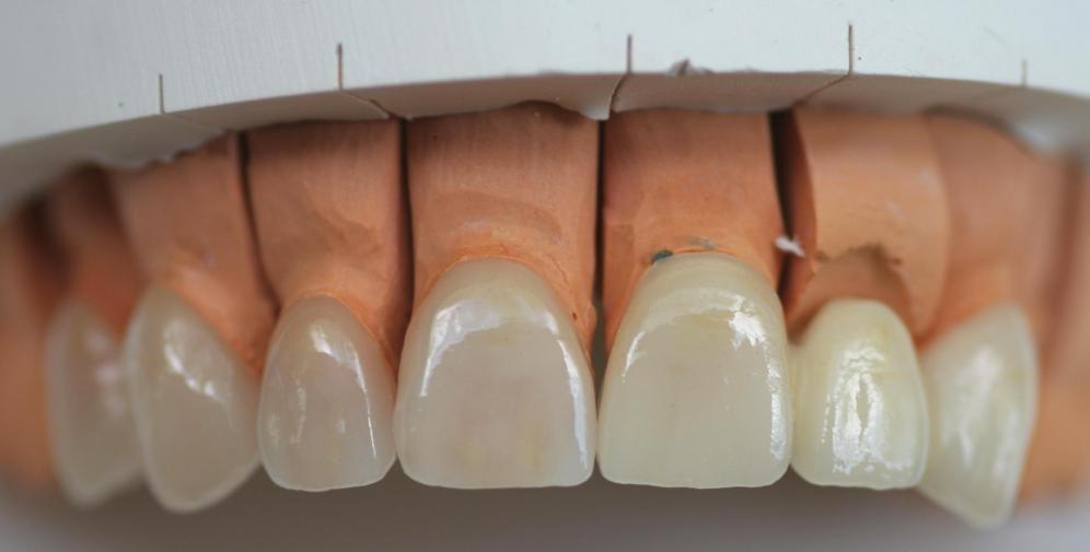 Фарфоровые виниры могут быть лучшим решением для плохо скошенных зубов.