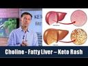 Choline is the Vitamin for a Fatty Liver Can Prevent Keto Rash
