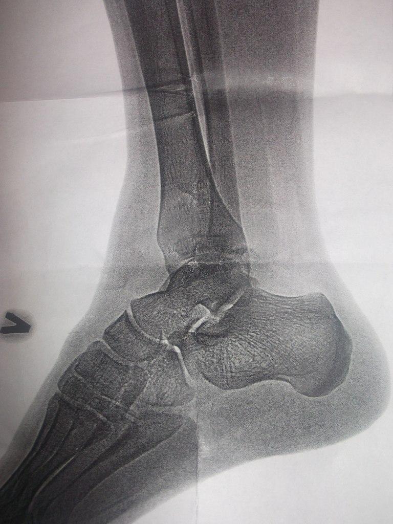 Сколько нужно ходить в гипсе при переломе лодыжки