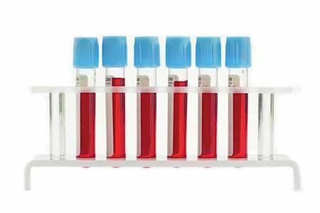 Образцы крови могут быть проверены на признаки наследственного заболевания крови.