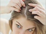 7 homemade solutions to fight dandruff naturally