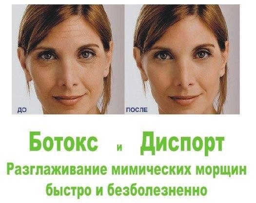 Диспорт по 80 рублей за