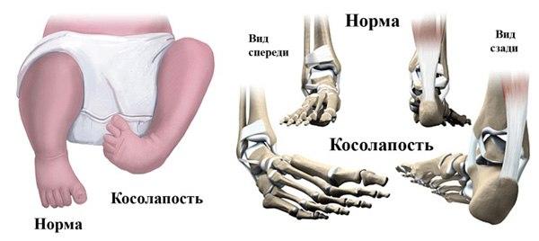 ebe01f483 Вашему ребенку поставили диагноз «вальгусная стопа»? Решение есть –  плосковальгусная стопа у детей успешно лечится врачами Русской