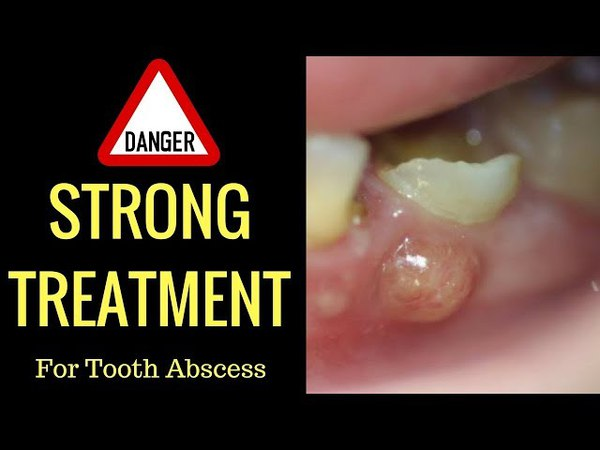 Cure Tooth Abscess Naturally In Record Time With This 1 Basic Technique