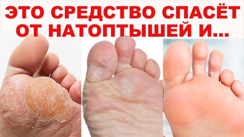 ИДЕАЛЬНЫЕ ПЯТОЧКИ КАК У МЛАДЕНЦА Волшебное средство для ног стопы от натоптышей мозолей трещин