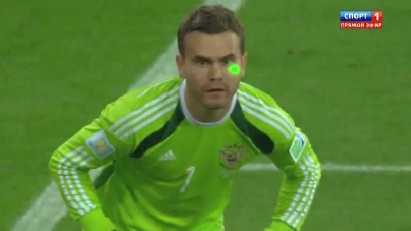 Ослепление лазером вратаря Акинфеева на Чемпионате мира Laser attack at the World Championships