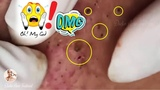 How to Get Rid of Blackheads &amp Whiteheads on The Face Easy, Cystic Giant Acne, #7
