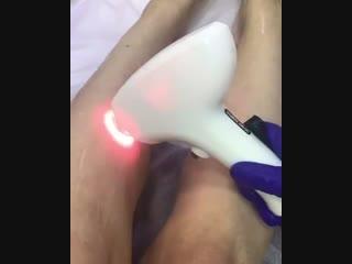 лазерная эпиляция София 89235915000