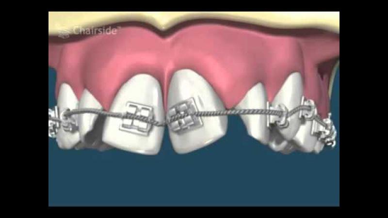 Ортодонтия Брекеты Выравнивание зубов