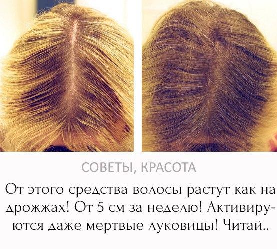Чтобы волосы росли быстрее в домашних условиях для детей