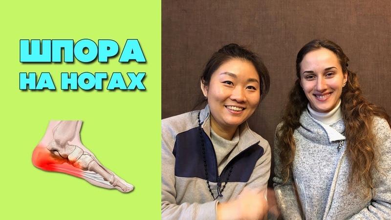 Шпоры на ногах | Китайская медицина о шпорах на пятках
