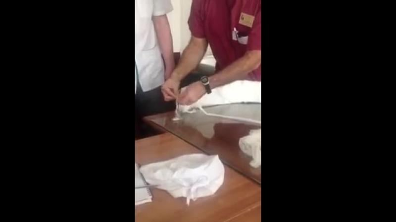 Перелом плеча (Лебідь)
