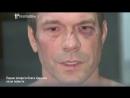 Киев. 14 апреля, 2014. Интервью Царева после избиения (HromadskeTV)