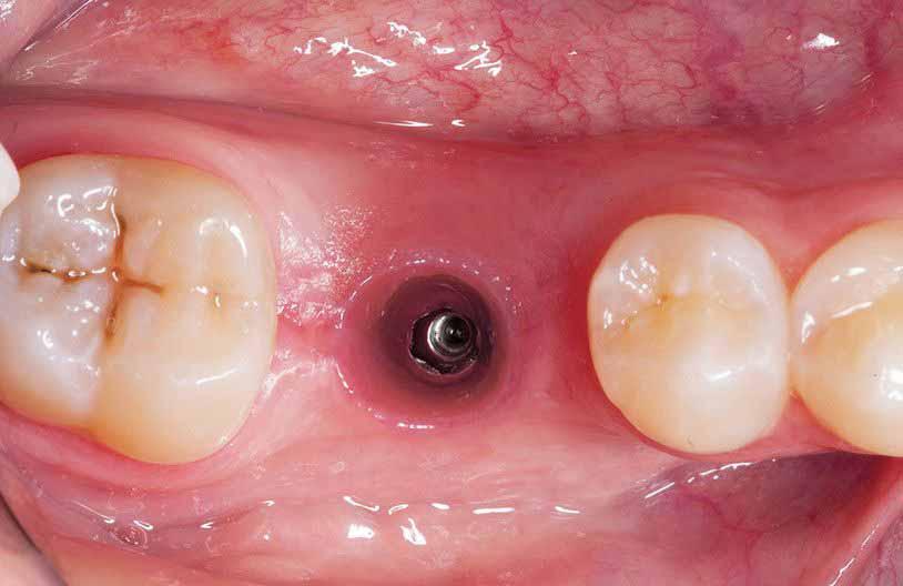Ношение неподходящих зубных протезов может увеличить воздухозаборник и вызвать метеоризм