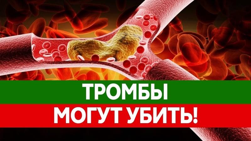 Как ТРОМБЫ УБИВАЮТ тысячи людей. Что делать если тромб оторвался? Тромбоэмболия и ее последствия.