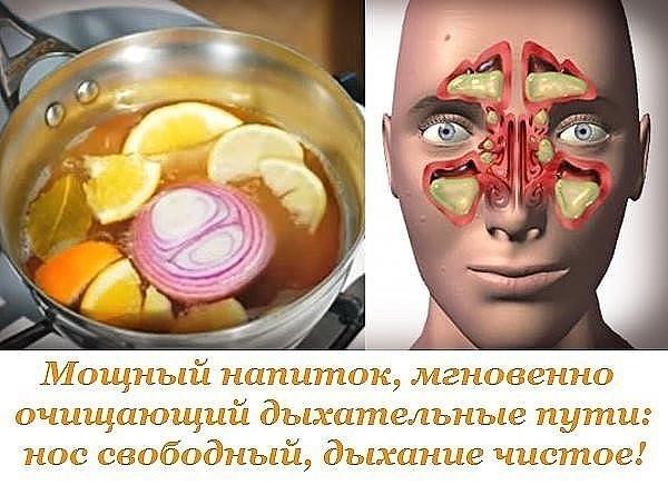 На заражение острой респираторной инфекцией наш организм реагирует обильным выделением слизи в носоглотке и такими неприятными симптомами, как заложенность носа, слезоточивость, отеки слизистой и околоносовых пазух, головная боль.