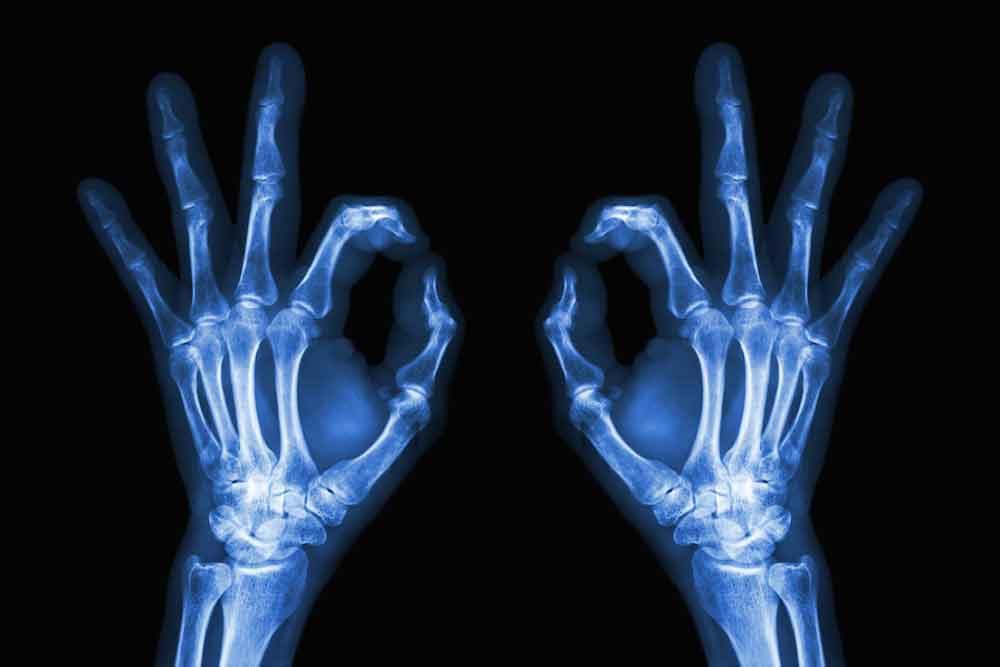 Что такое рентгеновские лучи?