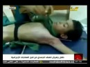 The boy which was tortured by rebels in Misurata