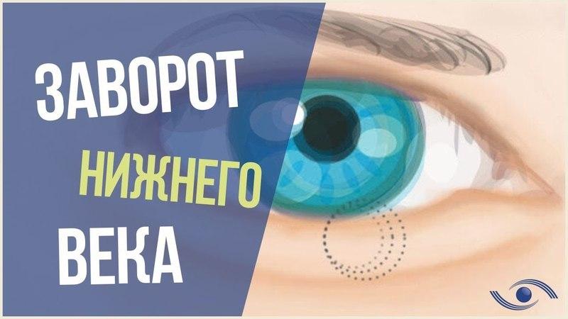 Заворот Века (Энтропион). Лечение заворота века в Новосибирске. Оперативное Лечение Энтропиона