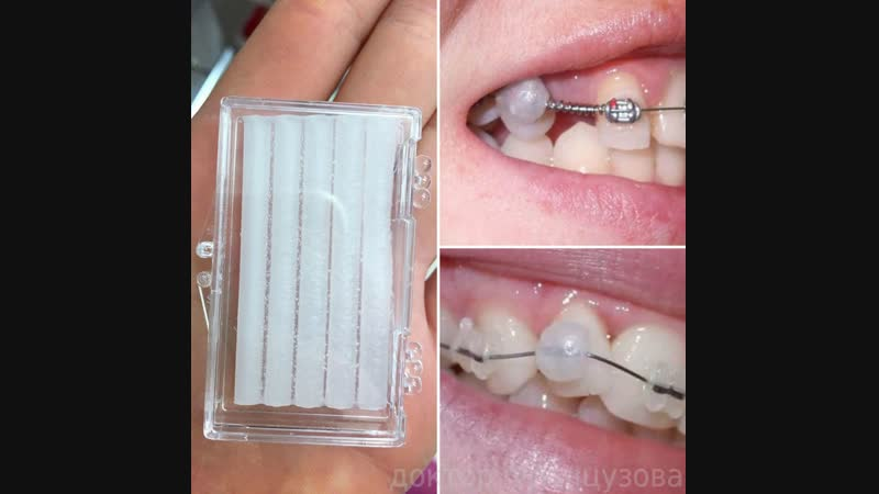 Воск ортодонтический.mp4