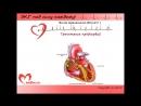 """Видеокурс """"ЭКГ под силу каждому"""". Урок 5. Нарушения ритма сердца: несинусовые тахикардии, трепетания и фибрилляции."""
