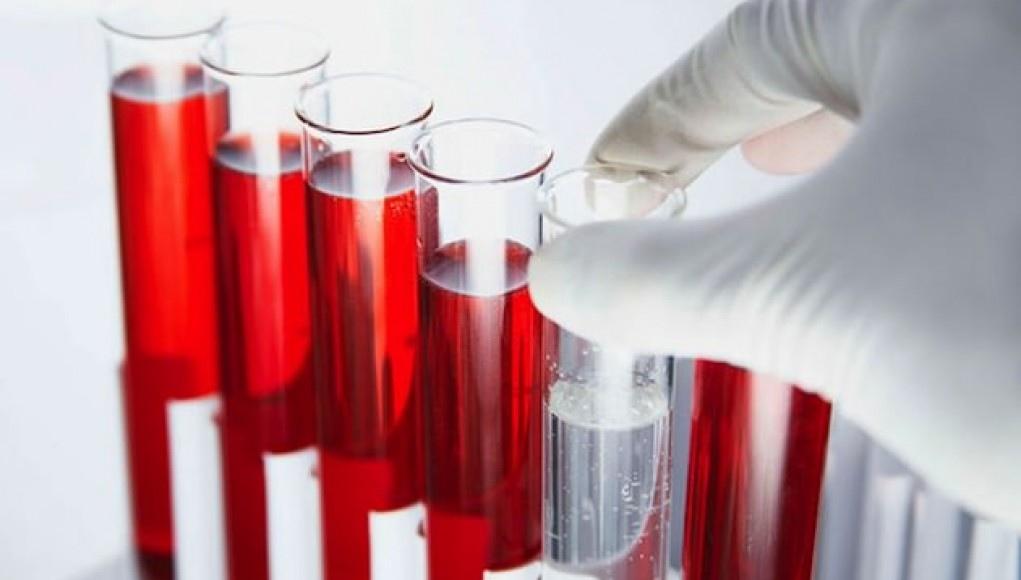 Расшифровка анализа крови, таблица: как понять, что указано в вашем анализе крови