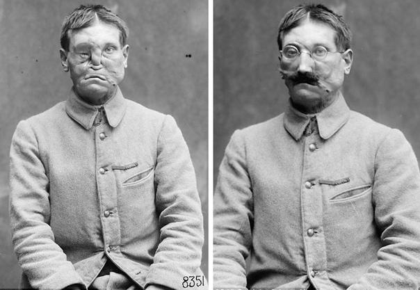 Истоки пластической хирургии: как скульпторы спасали изуродованных ветеранов Первой мировой войны Ветеранов Первой мировой с поврежденными лицами называли самыми трагическими жертвами войны они