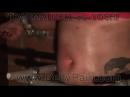 Traumatizer_vs_Yoshi_Preview-456239029