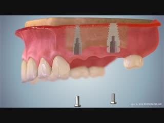Имплантат с конусным соединением Green Implant System