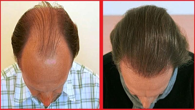 Миноксидил для мужчин | kirkland minoxidil | Миноксидил результаты фото до и после применения